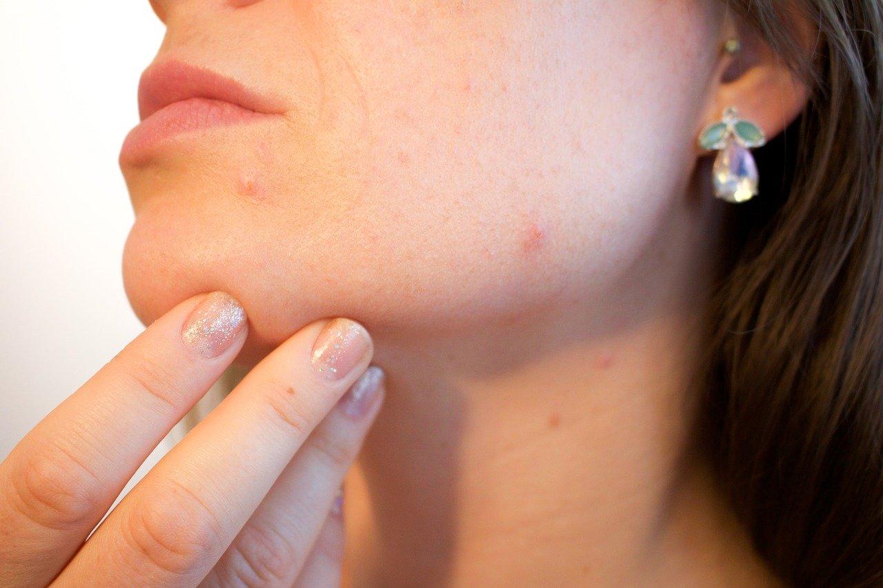 acnés sur le visage d'une femme